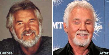 kenny_rogers_plastic_surgery.jpg